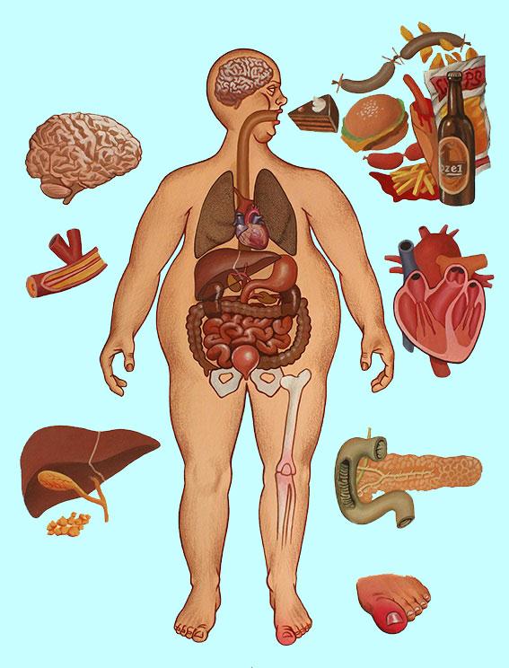 Obézník